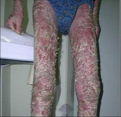 腿部牛皮癣症状图片