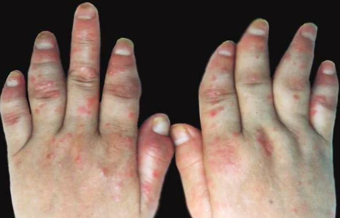 关节型牛皮癣的临床症状