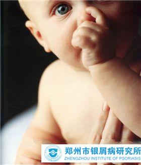 婴儿会出现牛皮癣吗