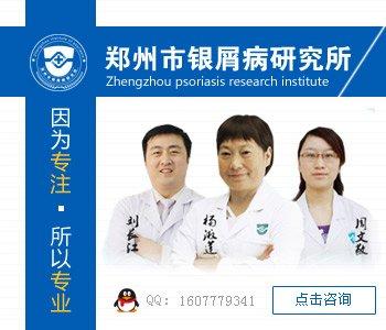 郑州牛皮癣医院